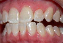 Fluorose dentária